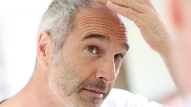 Ученые узнали, почему люди седеют и лысеют