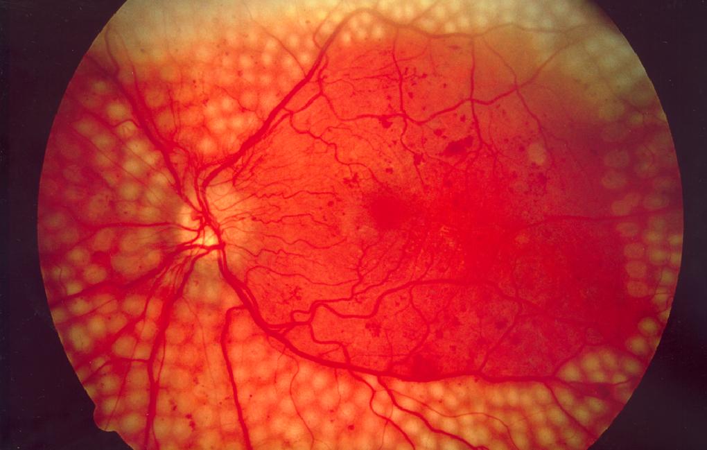 Google использует глубокое обучение для диагностики заболеваний (и весьма успешно)