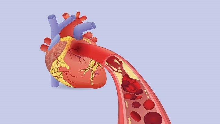 Истинная причина болезней сердца