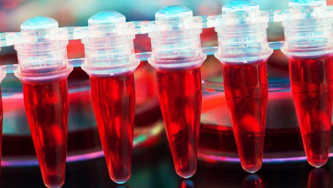 Ученые подобрались к секрету создания неисчерпаемых донорских клеток крови в лаборатории