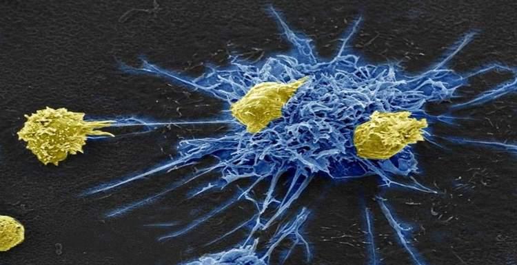 Разработана новая терапия для лечения ВИЧ - выманивает вирус и убивает его